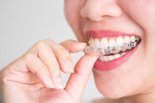ortodoncia transparente invisalign